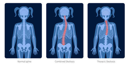 Spine X ray
