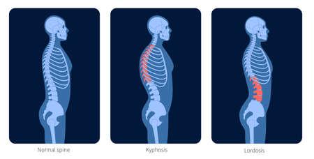 Spine X ray Vector Illustratie