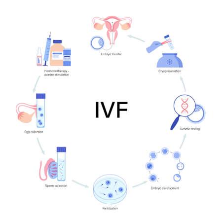 IVF vector illustration