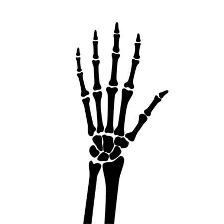 Arthritis x ray