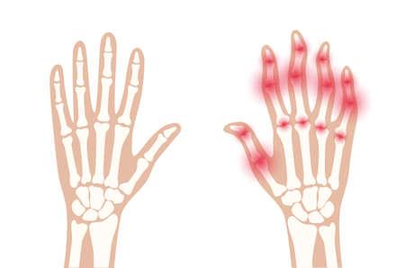 Arthrits x ray