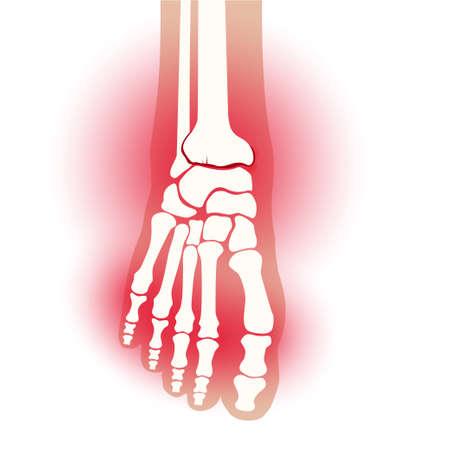 Arthritis foot concept Illustration