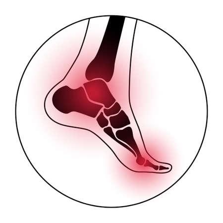 Arthritis foot concept Vectores