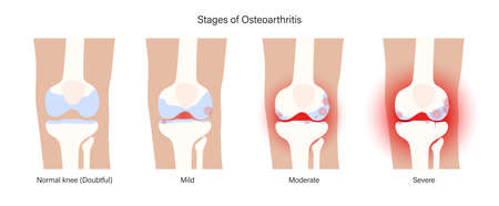 Arthritis in knee joint