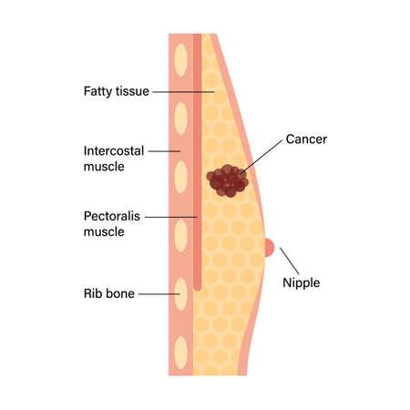 Breast disease concept Vettoriali