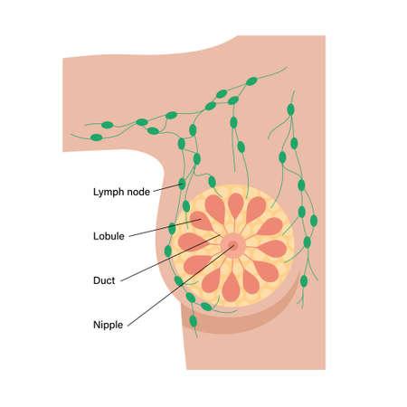Breast disease concept Ilustrace