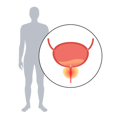 Prostatitis inflammation problem