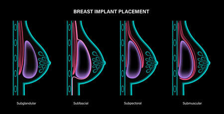 Breast Implant Concept