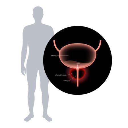 Prostatitis inflammation problem
