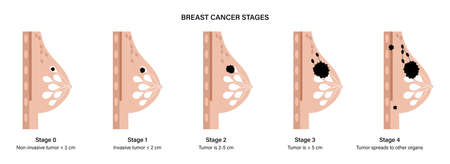 Breast disease concept 일러스트