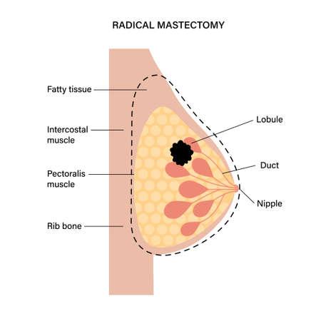Breast disease concept 向量圖像