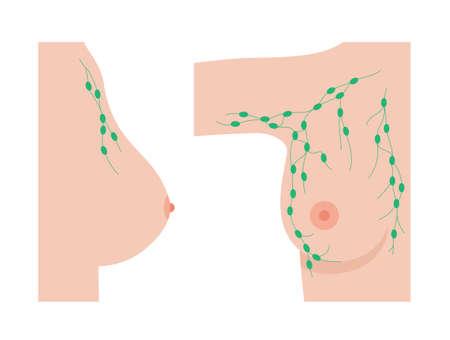 Breast disease concept Ilustracje wektorowe