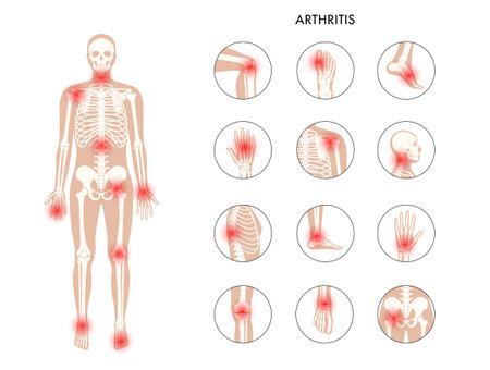 Human bones concept Vector Illustration