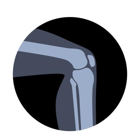 Human Normal Bones