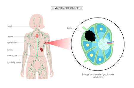 Lymphoma cancer concept