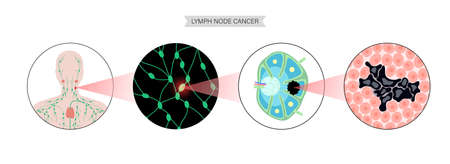 Lymphoma cancer concept