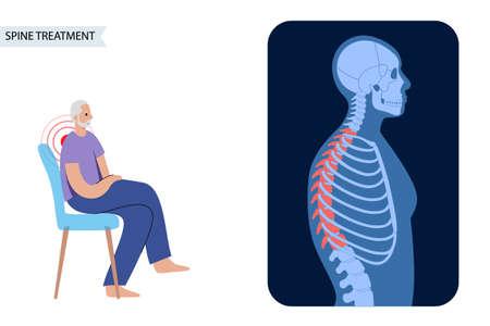 Scoliosis and spine pain Illusztráció