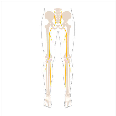 Sciatica pain concept Illusztráció