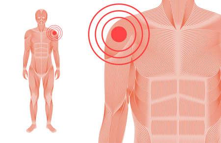 Shoulder pain concept 免版税图像 - 167951400