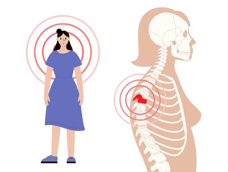 Scoliosis and spine pain Ilustracje wektorowe