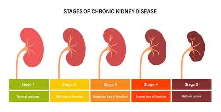 Kidney disease concept