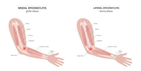 Lateral medial epicondylitis Illusztráció