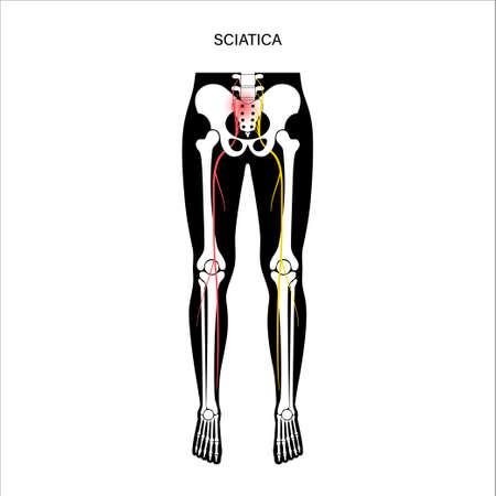 Muscular pelvis sciatica