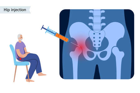 Hip joint injection