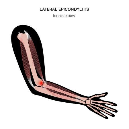 Lateral epicondylitis tennis elbow Illusztráció