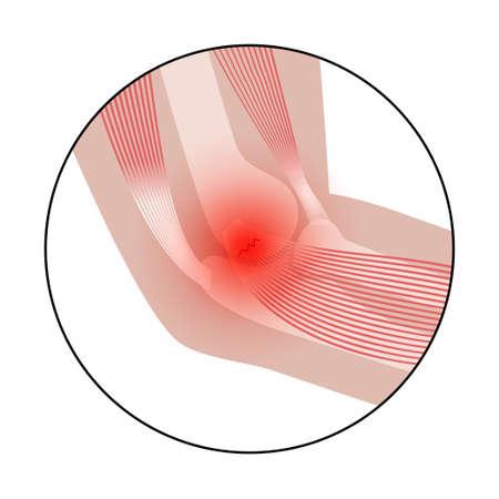 Medial epicondylitis golfer elbow Illusztráció