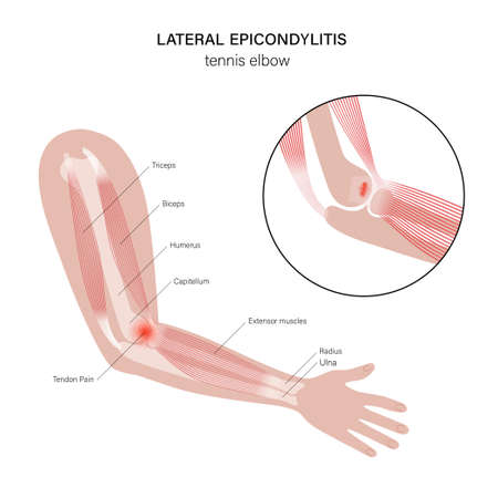 Pain in human arm. Lateral epicondylitis tennis elbow. Trauma or inflammation in hand. Muscular system and skeletal anatomical poster. Structure of muscle groups and bones isolated vector illustration 矢量图像