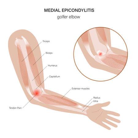 Medial epicondylitis golfer elbow Vector Illustration