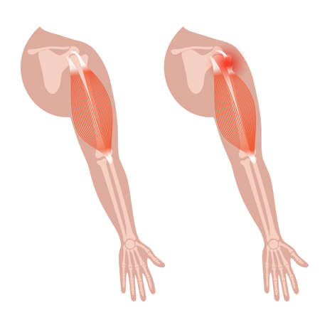 Biceps tear trauma 矢量图像