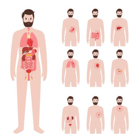 Pain in male body illustration 矢量图像