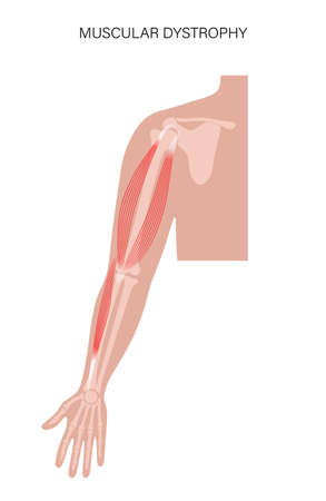Muscular dystrophy of arm illustration