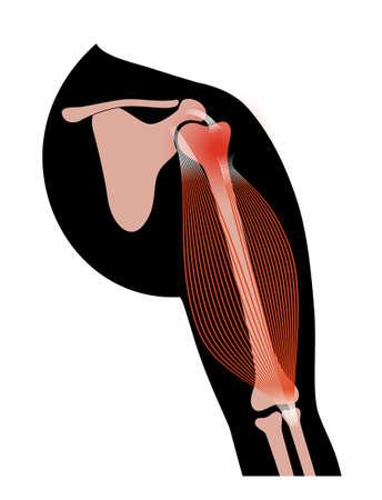 Biceps tear trauma 向量圖像