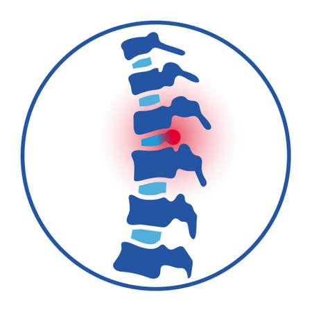 intervertebral hernia concept