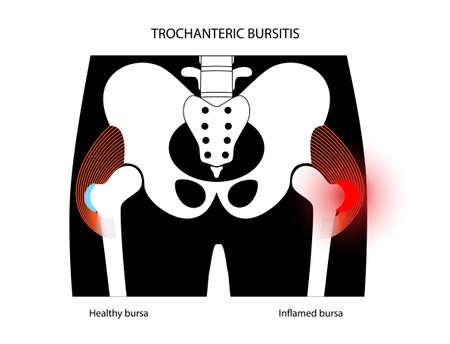 Bursitis inflammation concept