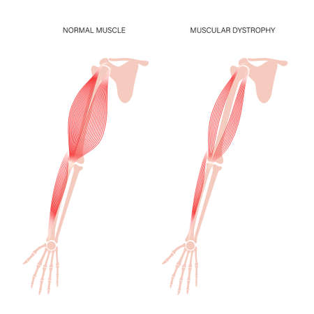 Muscular dystrophy of arm