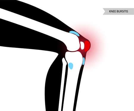 Bursitis inflammation concept Vektorové ilustrace