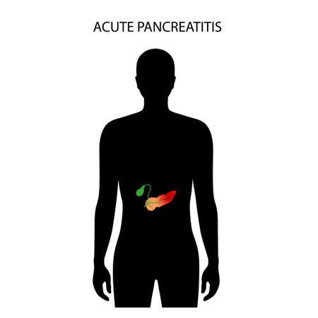 Pancreas disease and cancer 向量圖像