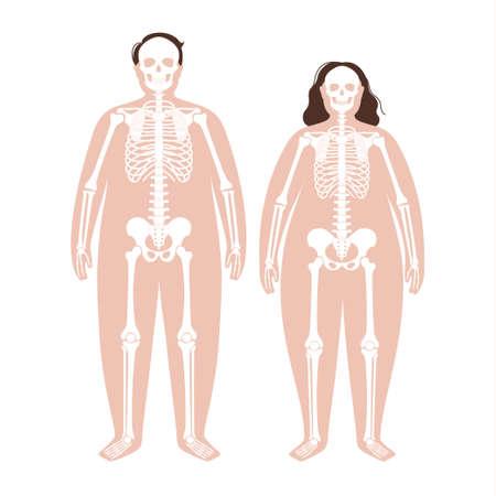 Obese skeleton anatomy