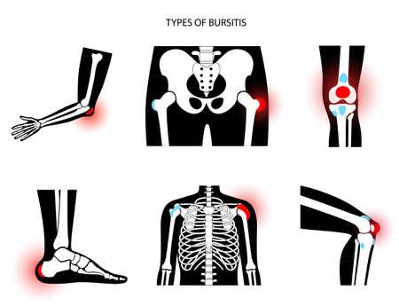 Bursitis icons set 向量圖像