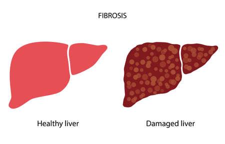 Liver disease concept