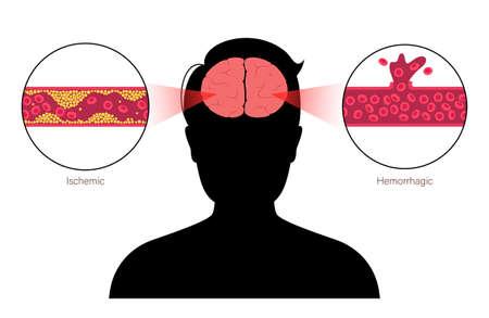 Brain stroke ishemic and hemorrhagic Vektorgrafik