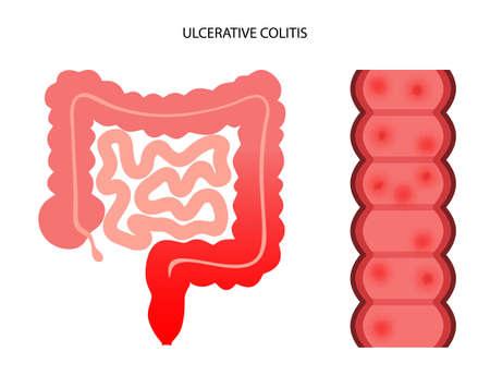 intestine ulcerative colitis
