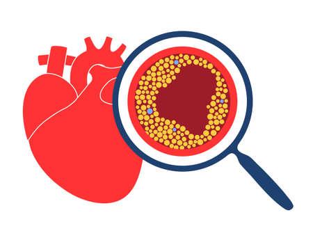 Cholesterol heart disease