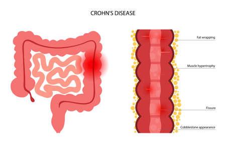 Chrons disease concept