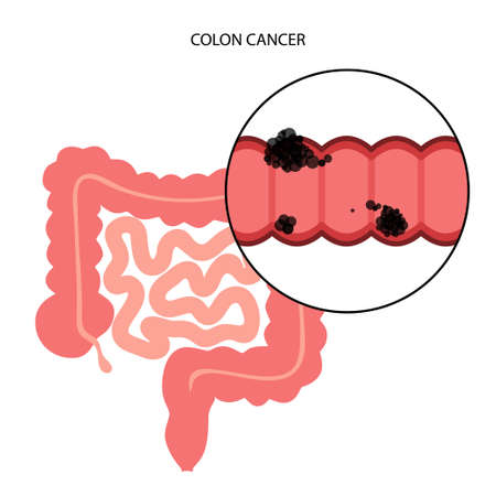 Colon cancer stage