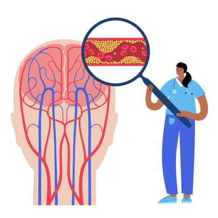 Brain stroke ishemic